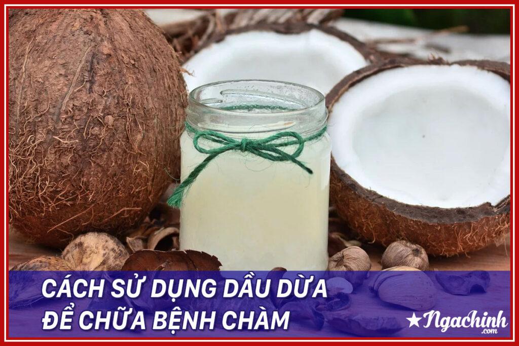 Dầu dừa có thể giúp chữa bệnh chàm